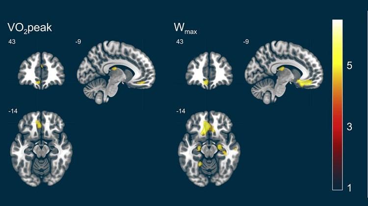 Зависимость объема серого вещества мозга от пикового поглощения кислорода, фото